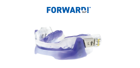 Scheu Tap T anti-snore mandibular advancement appliance
