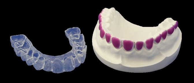 Bleaching trays, teeth whitening trays, with or without reservoirs, scalloped/unscalloped