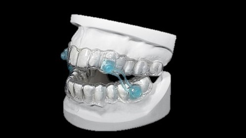Silensor anti-snore mandibular advancement appliance