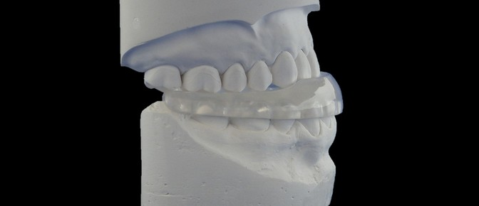 Full lower occlusal splint, anterior guidance, deprogrammer