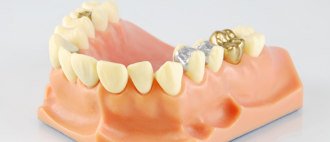 Dental crown and bridge work