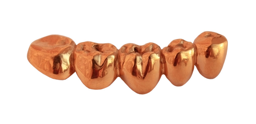 Gold dental crowns, gold dental work