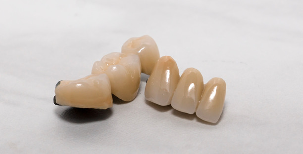 PFM, porcelain fused to metal, crown and bridge work, precious semi-precious or non precious dental work