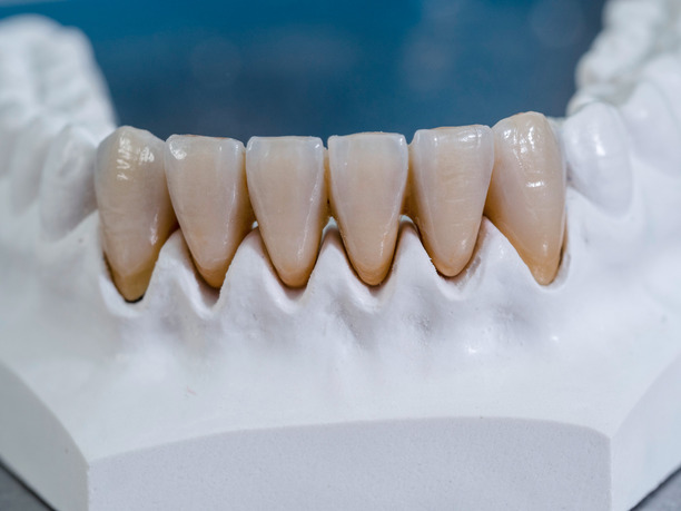 GC Gradia dental crowns, DC Gradia dental bridges