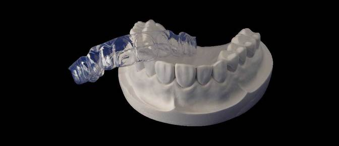 Essix clear removable retainer