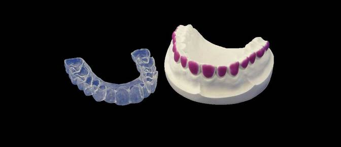 Bleaching trays, whitening trays
